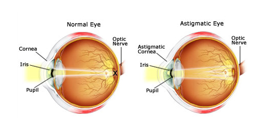 Twin Falls eye doctor eye conditions astigmatism