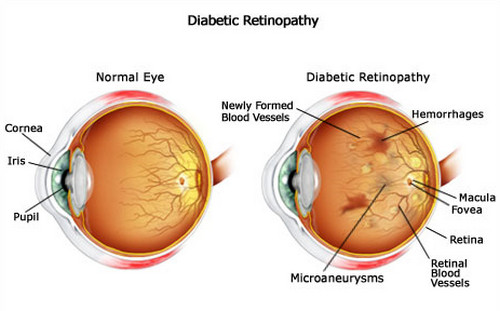 twin falls eye doctor diabetic eye disease