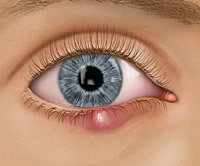 Twin Falls eye doctor eye conditions stye