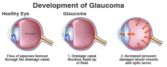 twin falls eye doctor glaucoma
