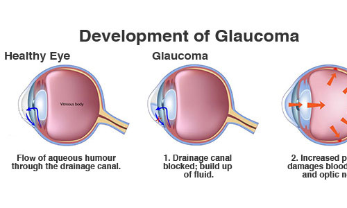 Glaucoma img | Welch, Allan & Associates